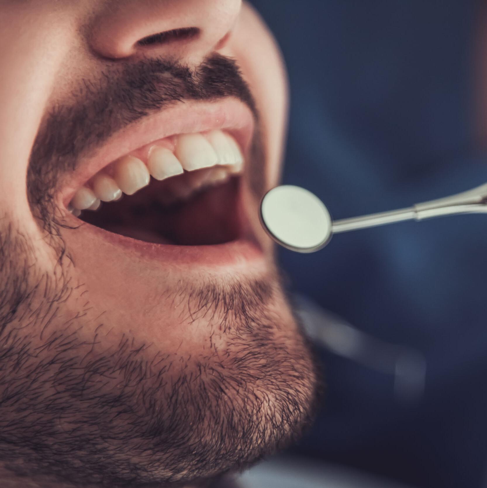 36 Top Photos Wann Wachsen Zähne / Kann Zahnfleisch Wieder
